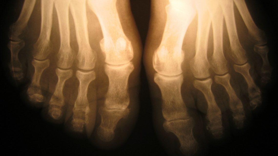 Lekarz ortopeda – jakie choroby leczy?